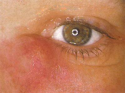 Δακρυοκυστιτιδα